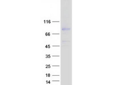 CCDC120 (NM_033626) Human Mass Spec Standard