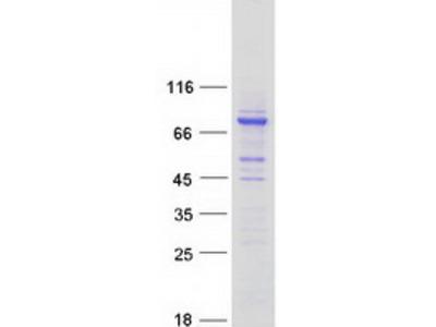CCDC138 (NM_144978) Human Mass Spec Standard