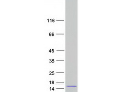 SPINT3 (NM_006652) Human Mass Spec Standard