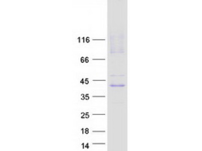 SLC29A1 MS Standard C13 and N15-labeled recombinant protein (NP_001071645)