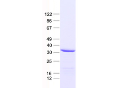 SLC25A38 (NM_017875) Human Recombinant Protein