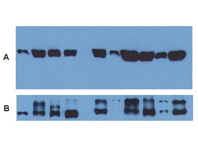 anti alpha Tubulin / TUBA1B (Loading Control)