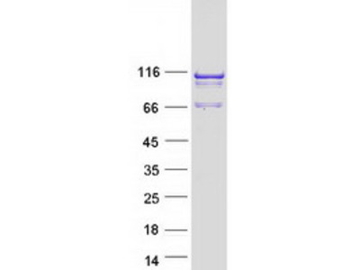 SPAG1 (NM_003114) Human Recombinant Protein