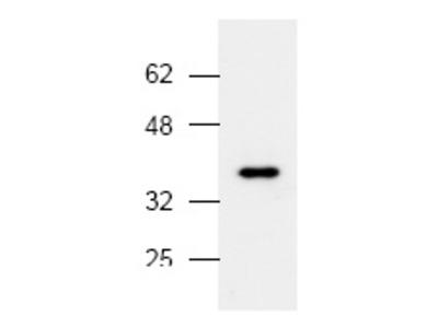 anti MAP kinase p38 alpha / MAPK14