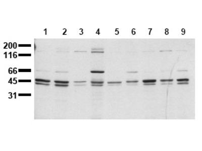 anti SHC1 / SHC (C-term) (incl. pos. control)