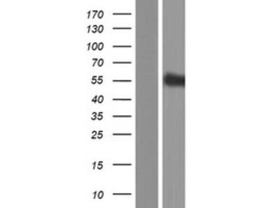 SIGLECL1 (SIGLEC12) (NM_033329) Human Over-expression Lysate