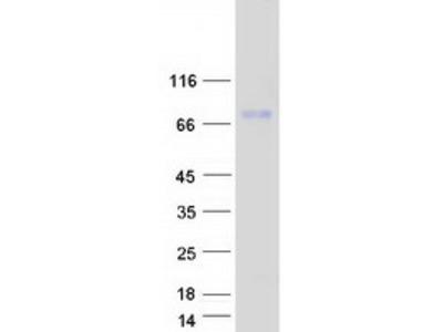SAMD4A (NM_015589) Human Mass Spec Standard