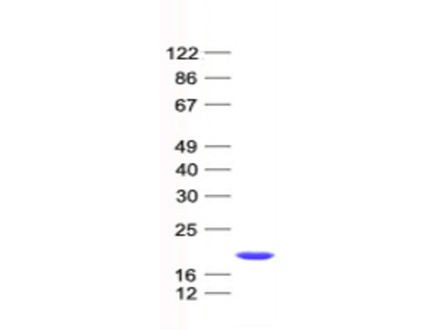 AVPI1 (NM_021732) Human Recombinant Protein