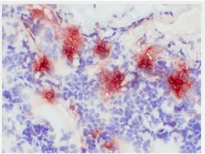 anti S100A8 / Calgranulin-A / MRP8