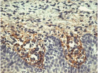 anti Tenascin / TNC / HXB