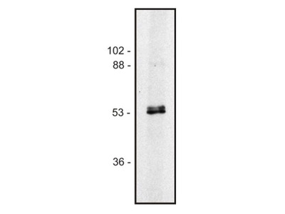 anti alpha + beta Tubulin (heterodimer)