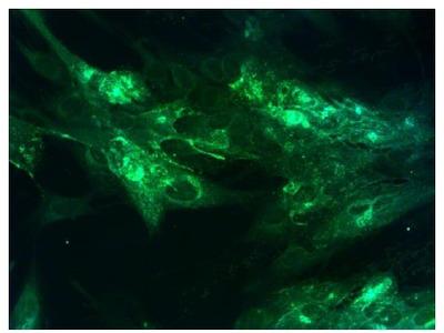anti VZV / HHV-3 Ellen strain, Glycoprotein H (GPIII)