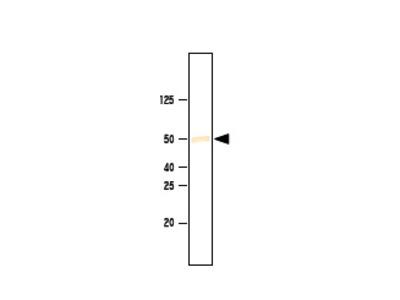 anti SETD7 / SET9 (1-366)