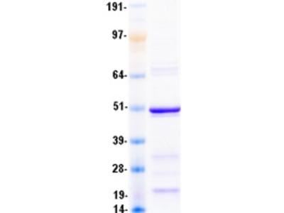 alpha Sarcoglycan (SGCA) (NM_000023) Human Recombinant Protein