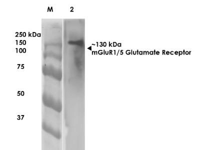 mGluR5 / 1 Antibody (S75-3)