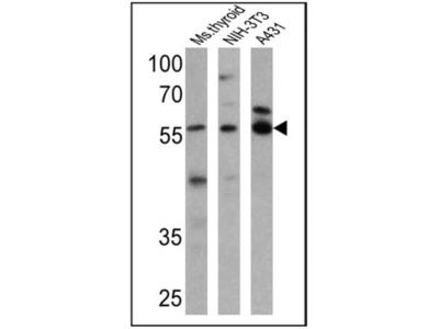 TR alpha / NR1A1 / Thyroid Hormone Receptor alpha Antibody