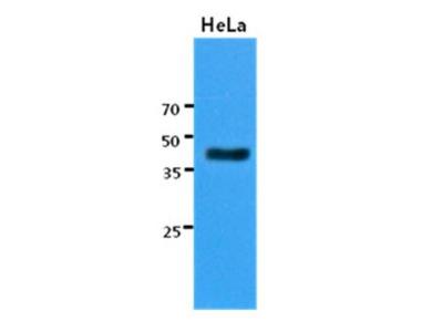 Mouse Monoclonal KRT23 Antibody