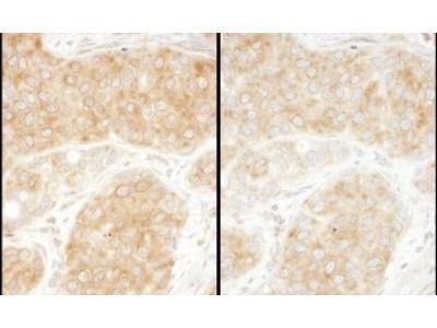 RPS11 Antibody