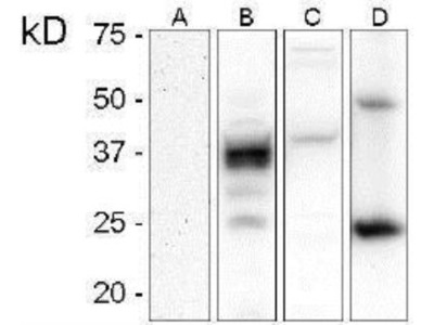 Prion protein Antibody (C16-S)