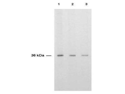Thymidylate Synthase Antibody