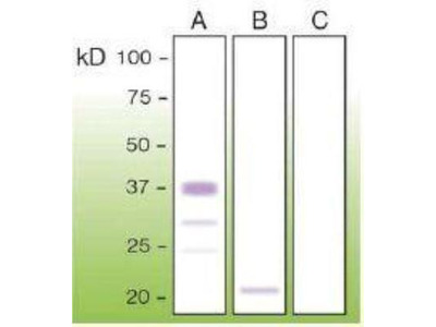Prion protein Antibody (T16-R)