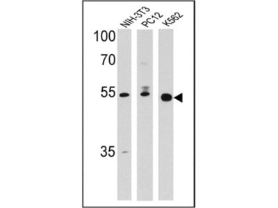 PPAR delta/NR1C2 Antibody