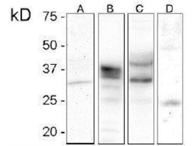 Prion protein Antibody (V21-V)