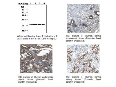 Peroxiredoxin II Antibody (1E8)