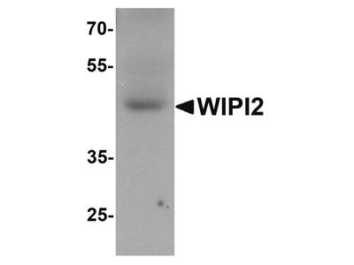 WIPI2 Polyclonal Antibody