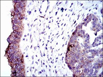 ALPL Monoclonal Antibody (2F4)