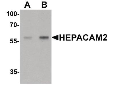 HEPACAM2 Polyclonal Antibody