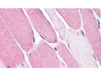 Bestrophin 3 Polyclonal Antibody