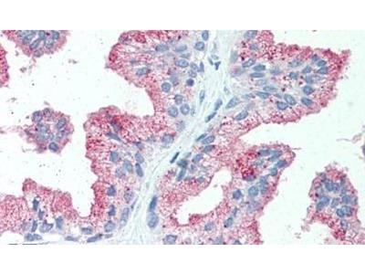 ZIP14 Polyclonal Antibody