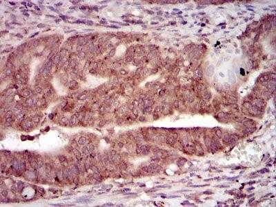 PKA gamma Monoclonal Antibody (2E4)