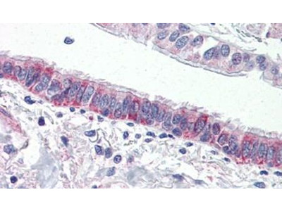 Protease-Activated Receptor-4 Polyclonal Antibody