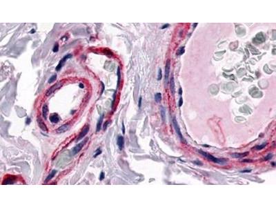 CALCRL Polyclonal Antibody