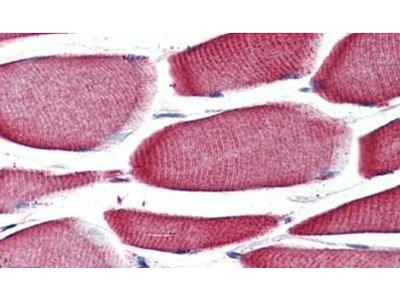 GPR43 Polyclonal Antibody