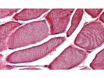 TRPV2 Polyclonal Antibody
