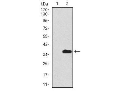 Uteroglobin Monoclonal Antibody (3A8B8)