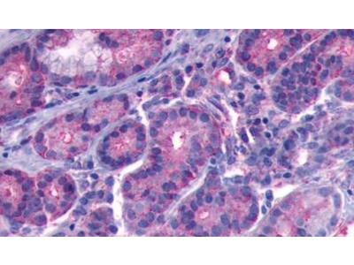 B1 Bradykinin Receptor Polyclonal Antibody