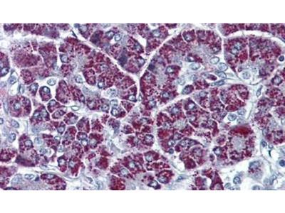 P2X3 Polyclonal Antibody