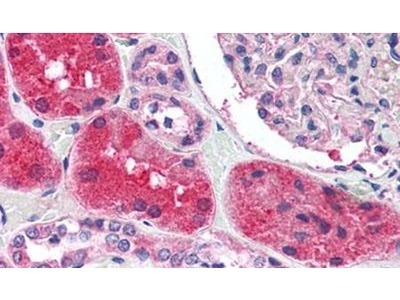 KCNN2 Polyclonal Antibody