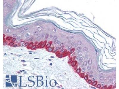 STEAP2 Antibody