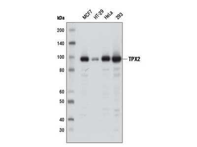 TPX2 (D9Y1V) Rabbit mAb