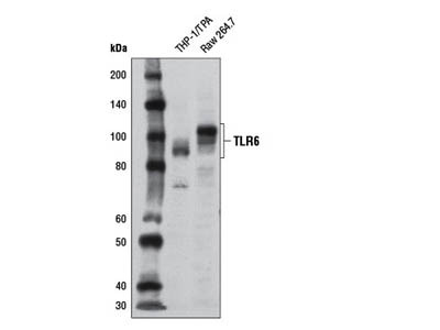 Toll-like Receptor 6 (D1Z8B) Rabbit mAb
