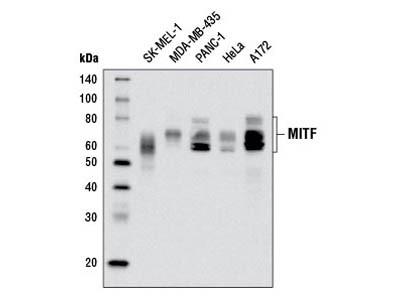 MITF (D5G7V) Rabbit mAb