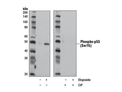 Phospho-p53 (Ser15) (D4S1H) Rabbit mAb (Rodent Specific)