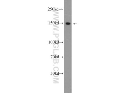 CPS1 antibody
