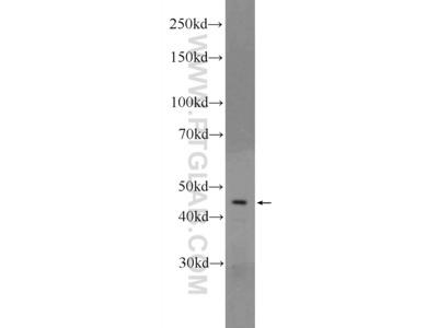 CRHR1 antibody