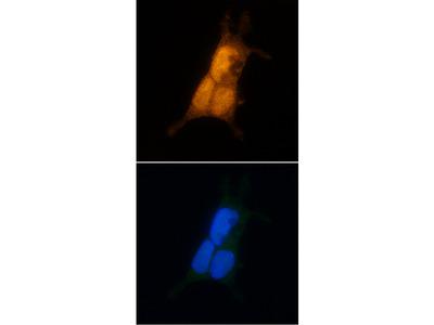Human Casein Kinase 2 alpha Antibody